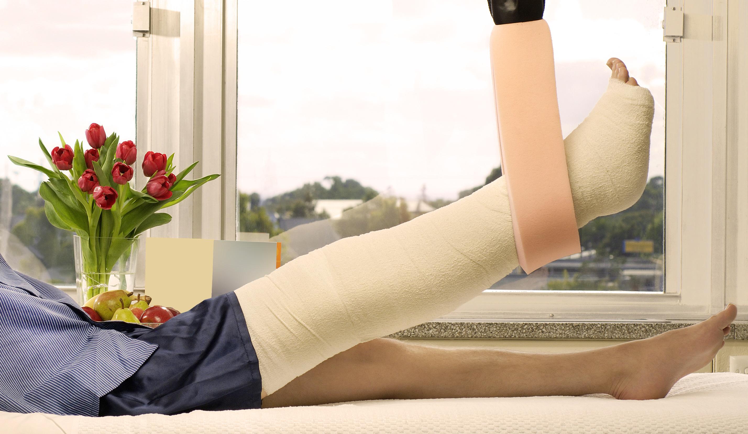 Mann mit gebrochenem Bein in Schlinge im Krankenhausbett